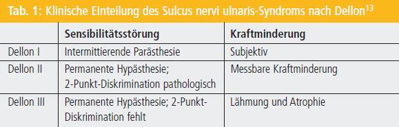 Sulcus ulnaris syndrom op wie lange krank