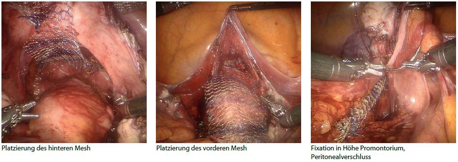 prolaps af uterus pasfoto esbjerg