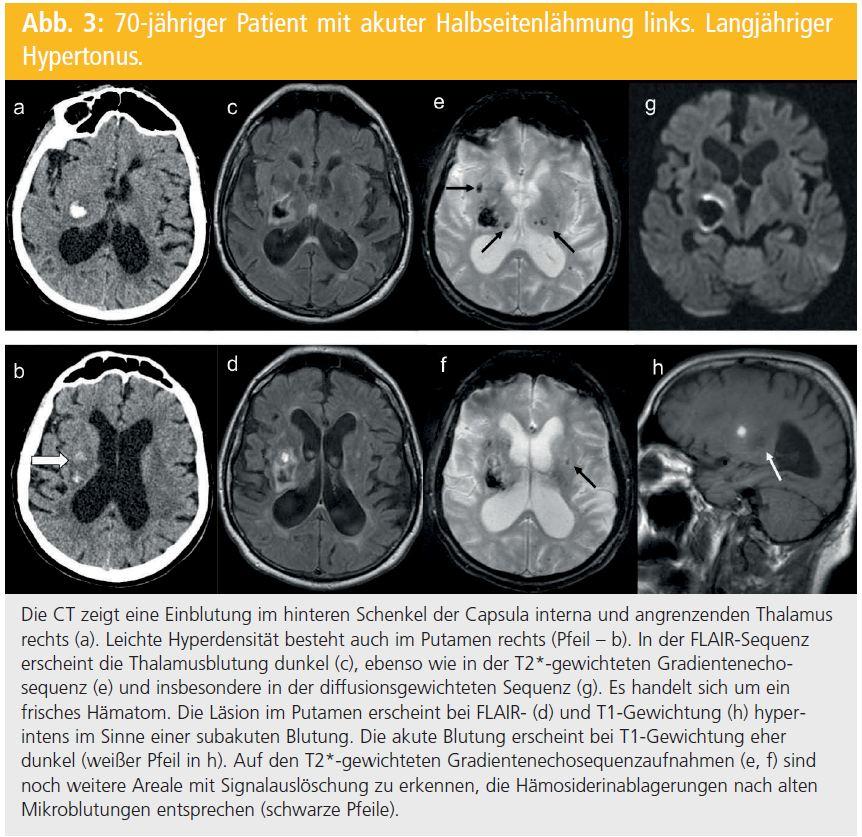 Neuroimaging bei Schlaganfall | Neurologisch | MedMedia