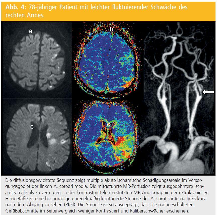 mikroangiopathie gehirn therapie