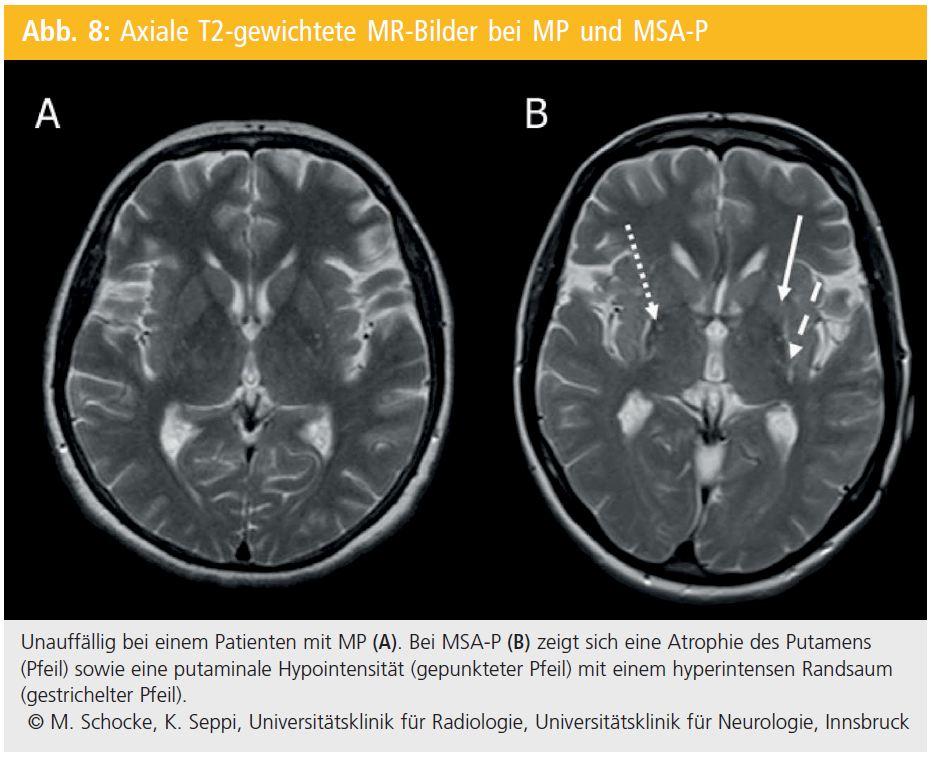 Niedlich Gehirn Mri Anatomie Radiologie Bilder - Anatomie Von ...