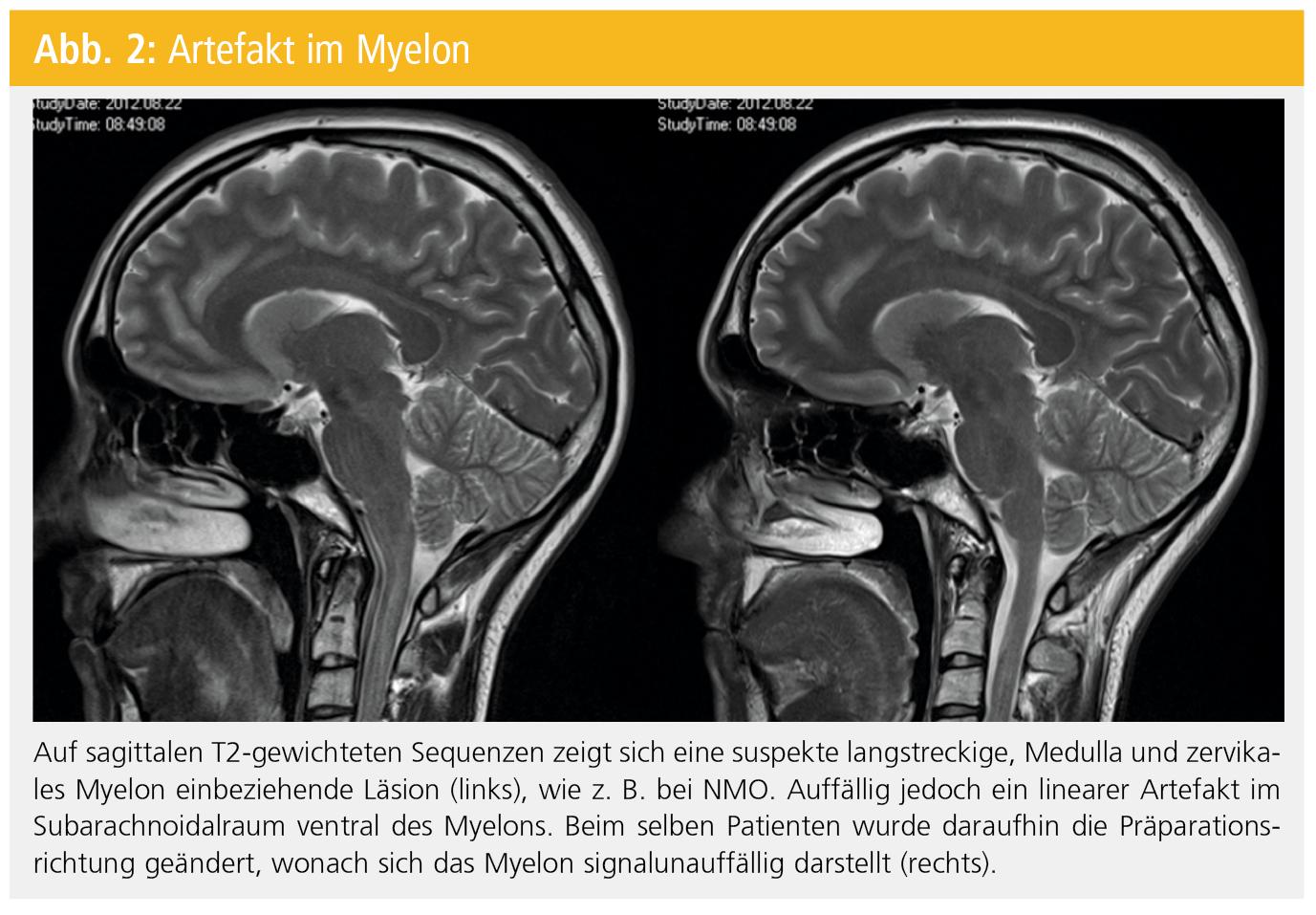 imponierende läsion im myelon
