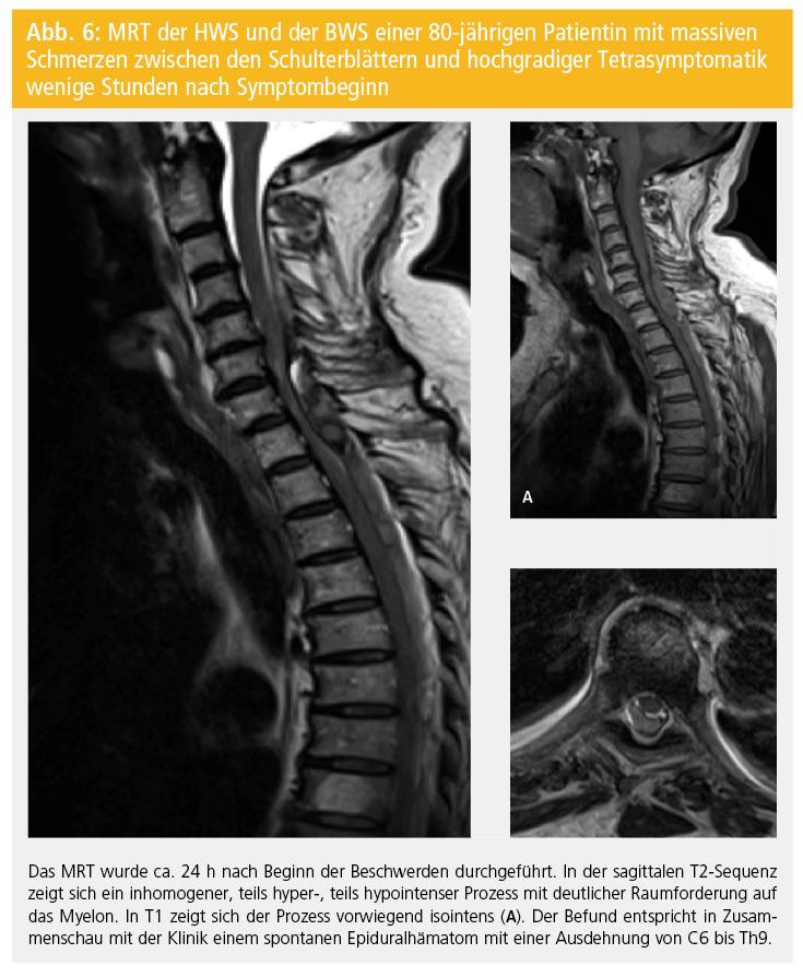 Vaskuläre Erkrankungen   Neurologisch   MedMedia