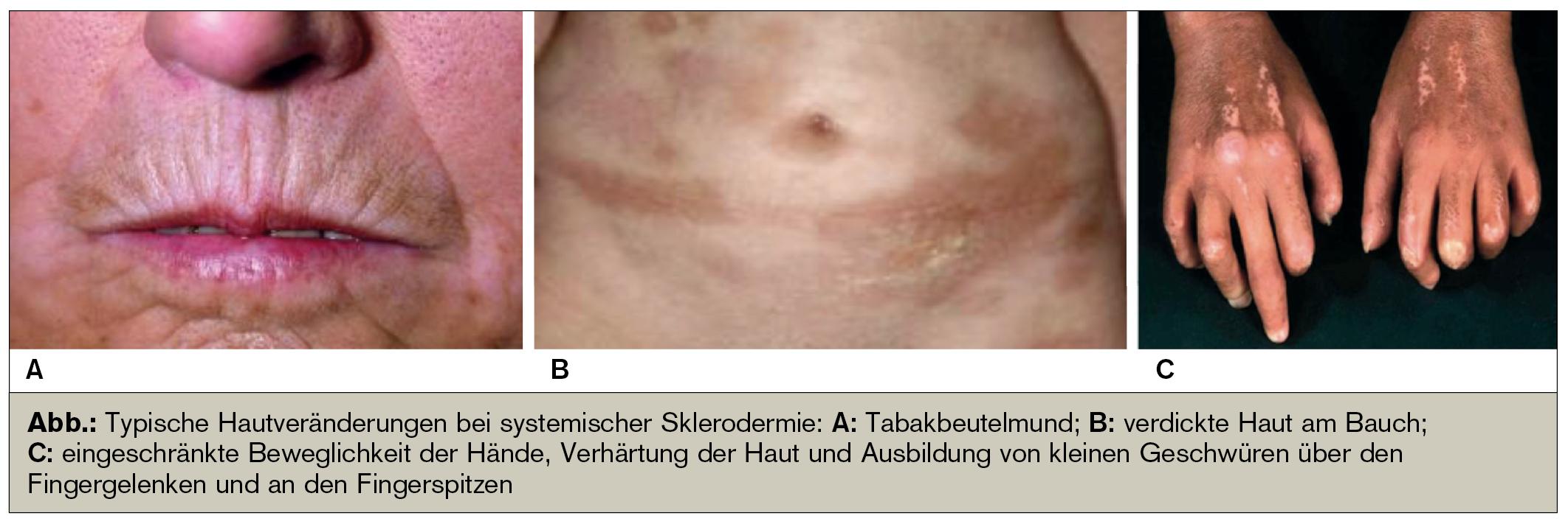 Sklerodermie – stigmatisierende Hautveränderungen | Universum Innere ...